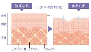 老化した肌細胞,毛穴ケア