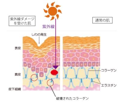 紫外線と老化