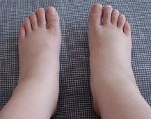 足の甲のむくみがつらい